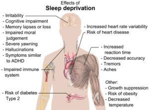 20145-sleep-effects_of_sleep_depr-huge